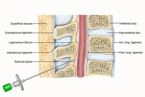 epidural injection