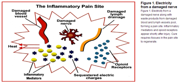 Electro Inflammation